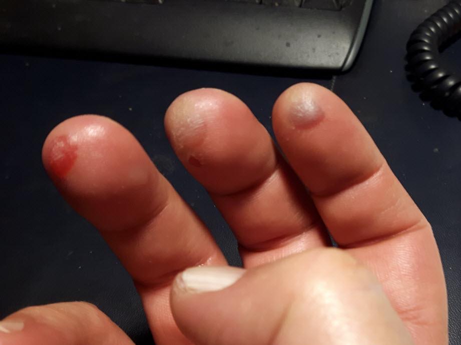 blisters.jpg